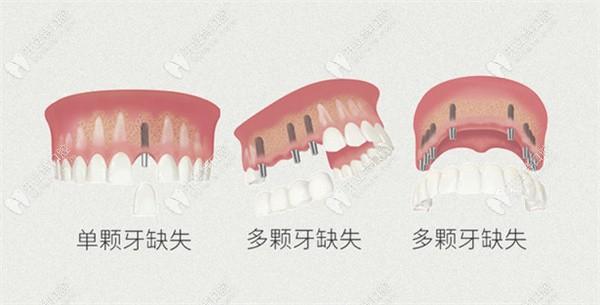 淇奥口腔各类种植牙修复术