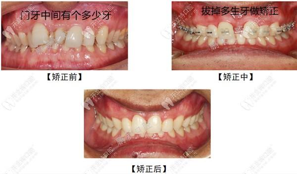 门牙多生牙矫正病例图