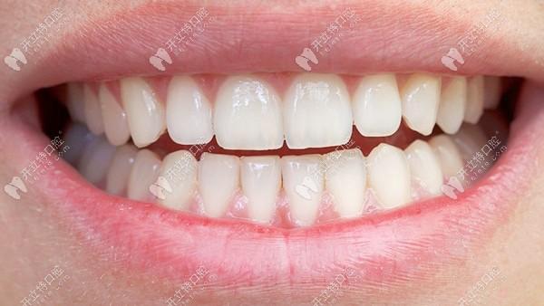 矫正或贴面可以改善门牙缝隙