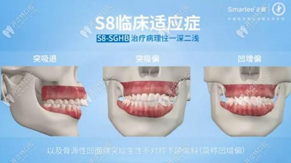 主要治疗关节源性错颌
