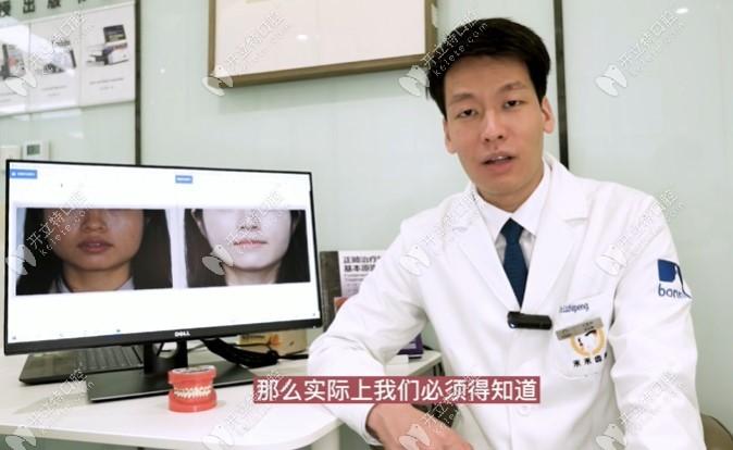 禾禾齿科双井张栋梁团队医生解析:国字脸正畸后如何变小V脸