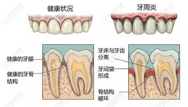 长春传阳牙周疾病、根管治疗