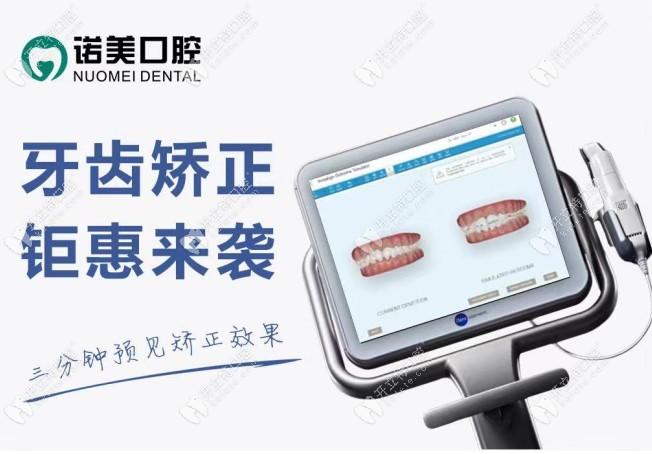 北京私立连锁牙科全隐形牙套矫正的价格在暑假打下来了