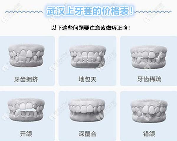 武汉上个牙套大概多少钱,这份武汉牙套价格表很完善哦!