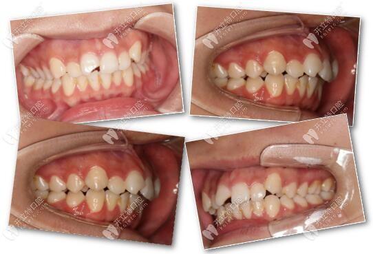 把龅牙+咬合不整齐矫正后脸型的变化图和心得分享给你