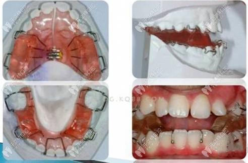 Twin-block功能性矫治器配合颌间牵引,可帮助儿童导下颌向前