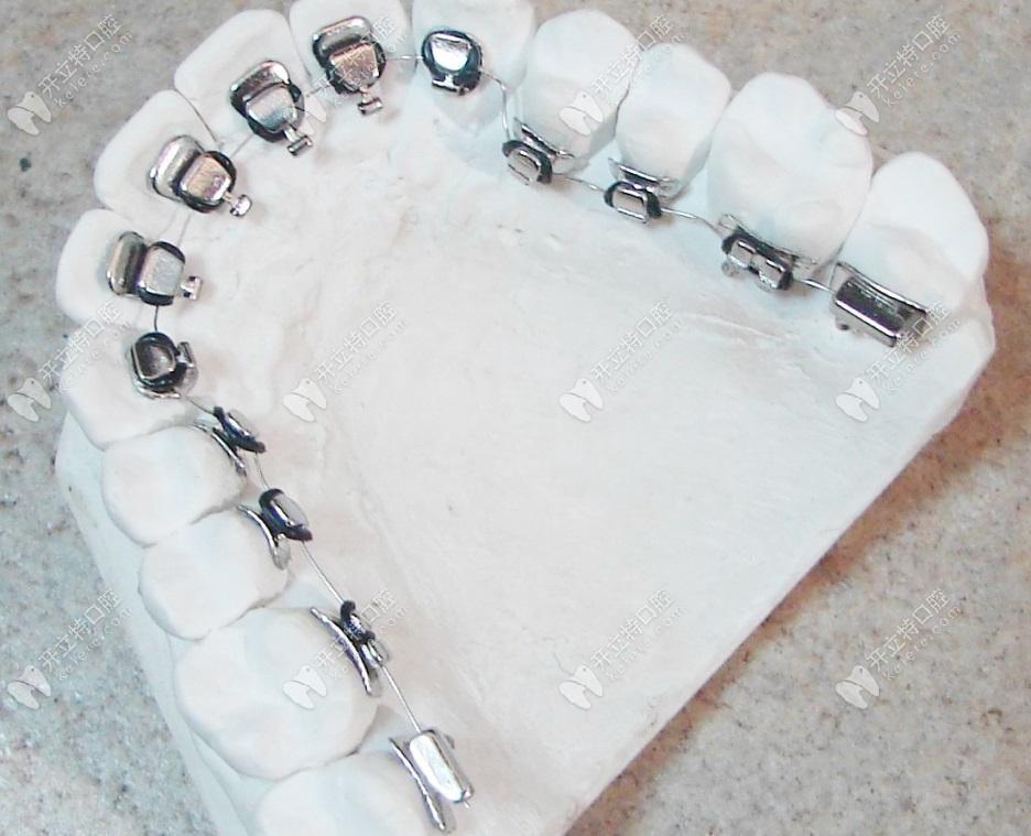 院内舌侧牙套的模型