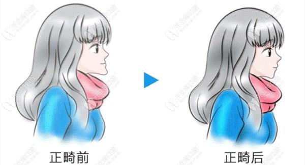 正畸前后的侧貌对比