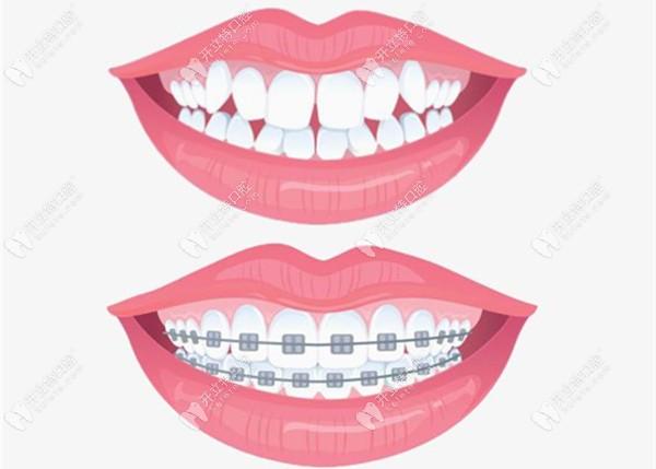 上海牙齿矫正医院及医生推荐