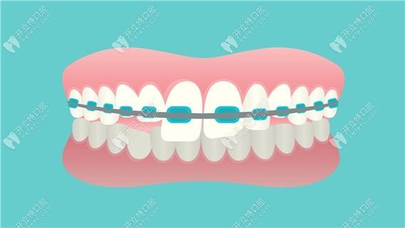 南京牙齿正畸医生和医生