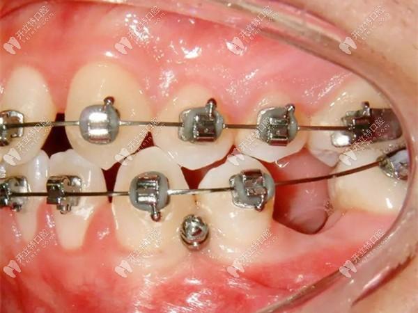 一般牙齿矫正需要多长时间,加大力度正畸速度是不是能快点