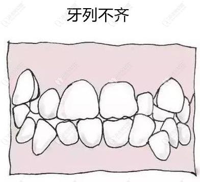 环球口腔用时代天使标准版隐形牙套矫正了我的牙列不齐,赞!