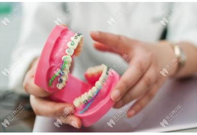长春传阳口腔可以不拔牙矫正