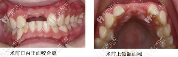 18岁帅锅用韩国奥齿泰TS3种植体做前门牙种植的全部过程