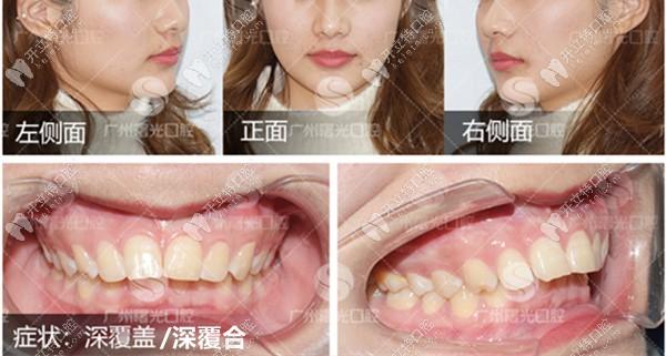 正畸日记:深覆合牙齿戴陶瓷自锁半隐形牙套矫正的全过程
