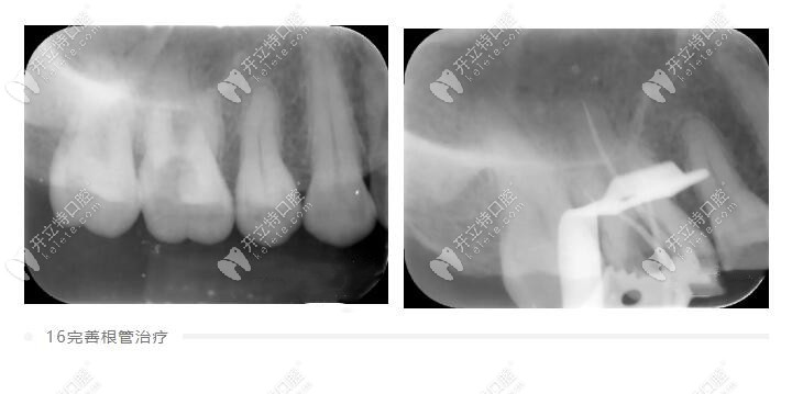 国产瓷倍健全瓷牙修复后槽牙一颗,确实比烤瓷牙更美观