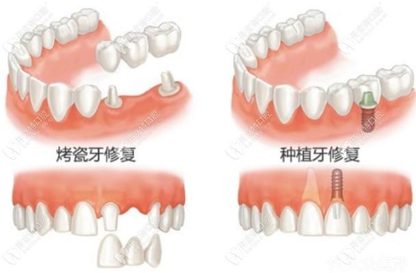 晒完兰州德尔牙科镶一颗牙多少钱,技术好的医生介绍也得有