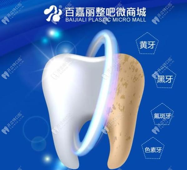 原来黄牙/氟斑牙/色素牙在百嘉丽做冷光美白的价格才777元起
