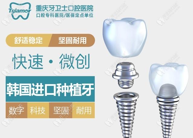 重庆江北牙卫士口腔医院价格表你有吗?收费不贵还能用医保