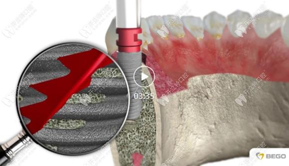 德国贝格bego种植体品牌中也有适合前牙即刻种植修复的型号