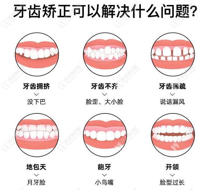众仁口腔牙齿矫正