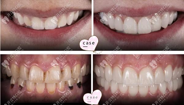 牙齿形状和颜色不好看怎么修整?超薄瓷贴面正是丑牙的克星