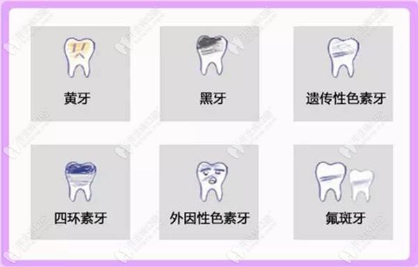 前门牙脱矿着色怎么治疗?其实做皓齿美白的成效就让人羡慕