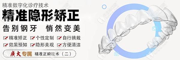 广州广大口腔的隐形正畸