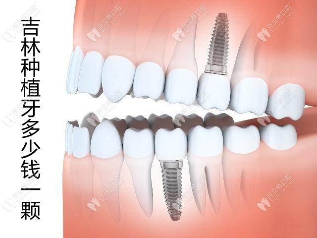 想造吉林种植牙多少钱一颗?这有比较好的口腔医院收费标准