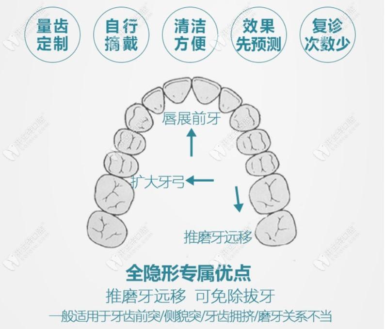 重庆牙卫士口腔做牙齿矫正多少钱?隐形矫正的那种贵不贵