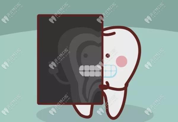 看牙前医生为什么要让拍X光片,莫非是想多收钱?