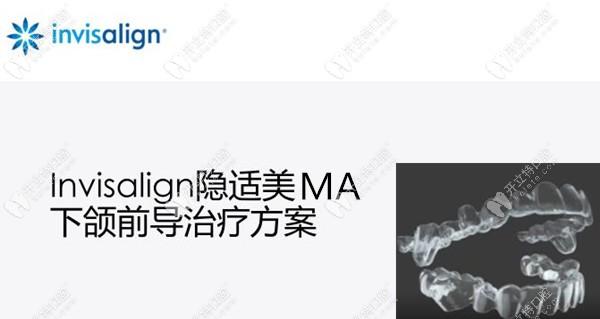 适合青少年正畸用的隐适美MA矫正器导下颌向前一次可达2MM