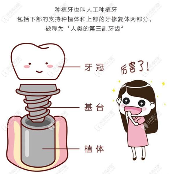 广州曙光口腔价格表让你看清做种植和矫正的价格不贵