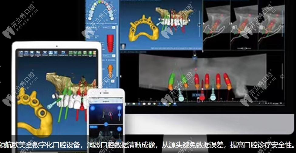 3D导板数字化微创种植牙演示画面