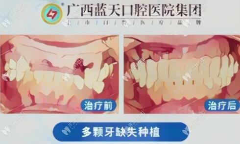 贵港蓝天口腔医院种牙好不好?LOOK蒋全利医生的种植牙病例