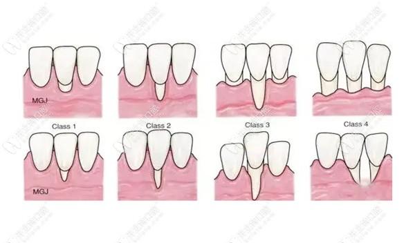 牙龈萎缩怎么办