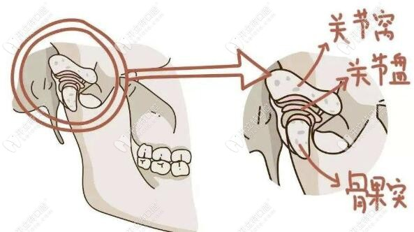 TMD颞下颌关节疾病分解图