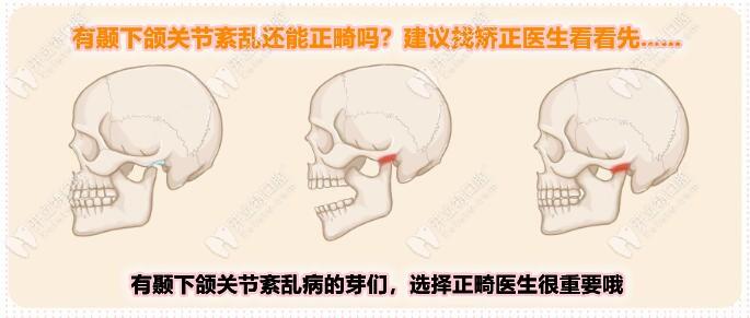 正畸可以改善颞下颌关节紊乱