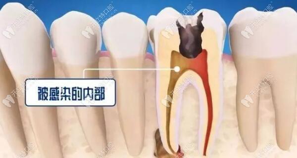 根尖炎和牙髓炎的区别及治疗方法和费用,这儿都有