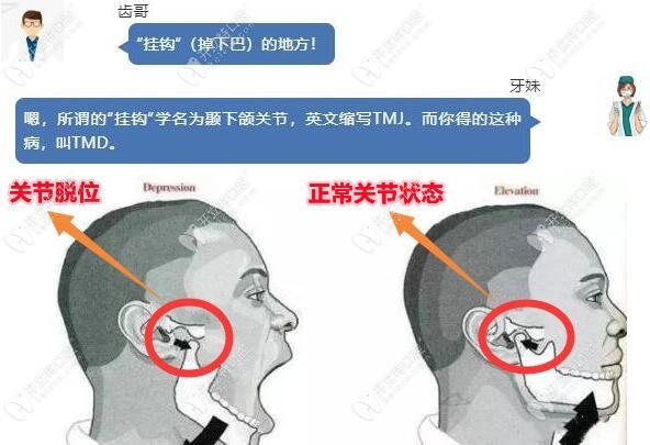 TMD颞下颌关节炎早期症状