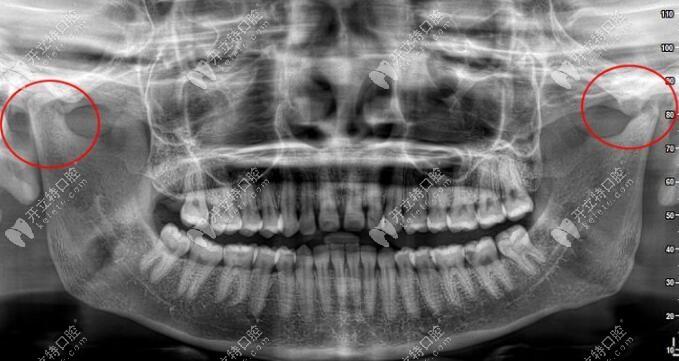 明显有较重颞下颌关节紊乱,不可直接做矫正