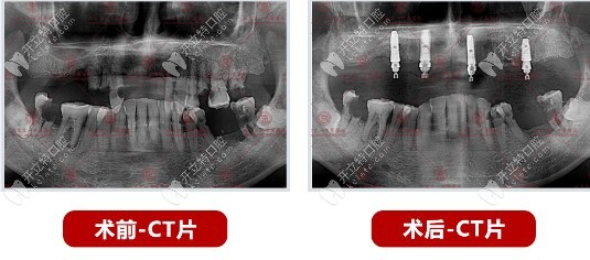 刘林医生为58岁老人做的上半口allon4种植牙病例