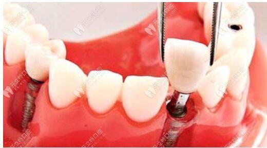 即拔即种种植牙的条件