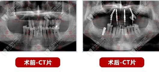 王振华院长给60岁老人做的allon4上半口种植牙病例