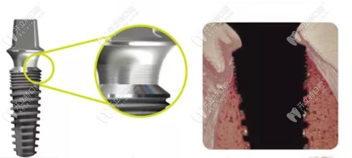 韩国沃兰种植体微凹槽设计