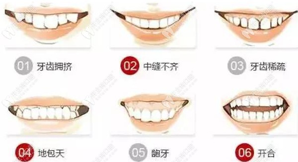点赞成都君臣口腔正畸医生姜丹靠谱的牙齿矫正技术!