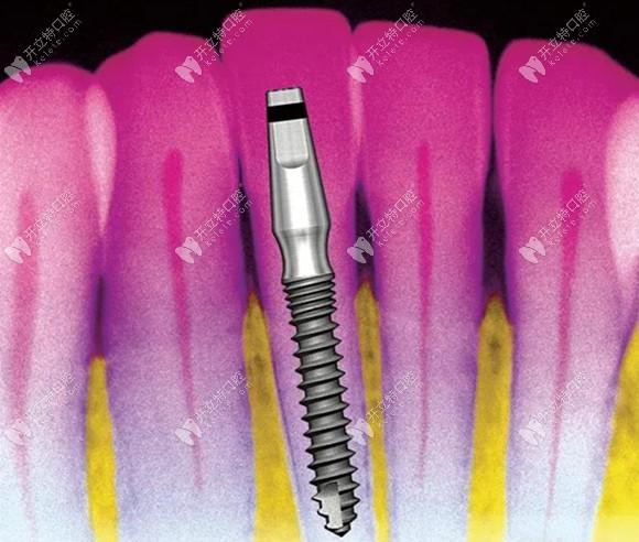 韩国奥齿泰MS Implant种植体,适合于窄小牙槽嵴及覆盖义齿使用