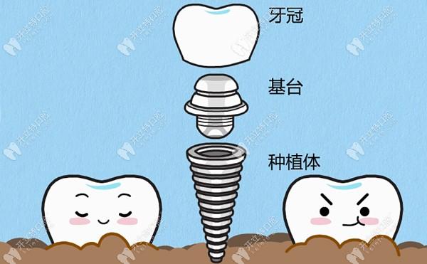 成都极光口腔种植牙医生