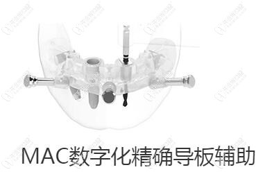 麦芽口腔MAC数字化精准导板种植牙