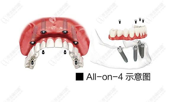 兰州牙王国数字化口腔种植牙